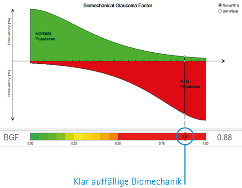 Biomechanical Glaucoma Factor