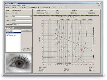 OCULUS perimetry software: Glaucoma Staging System (GSS 2) per Brusini