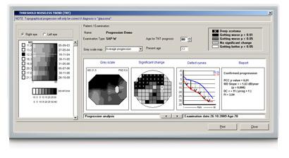 OCULUS perimetry software: Threshold Noiseless Trend (TNT) Progression Analysis