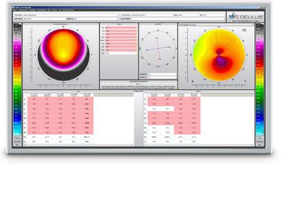 software easygraph keratoconus detection oculus inc