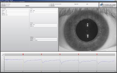 Resultado de imagen de keratograph y pupilometria
