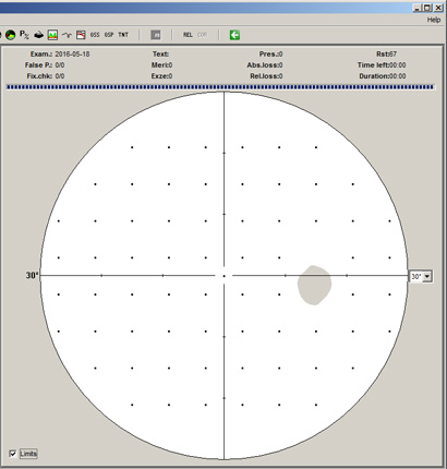 Test Patterns of the OCULUS Smartfield perimeter
